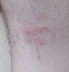 Bites from bedbugs on leg.